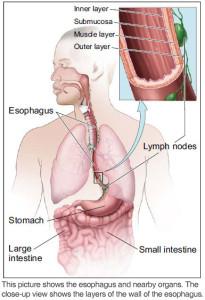 esophagus1-205x300
