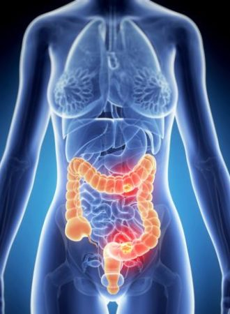 Cologuard Non Invasive At Home Colon Cancer Tests